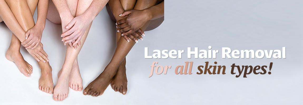 Calgary-laser-hair-removal.jpg