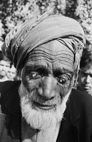 100.000 Menschen haben entweder vorübergehende oder dauerhafte Augenschäden erlitten. -