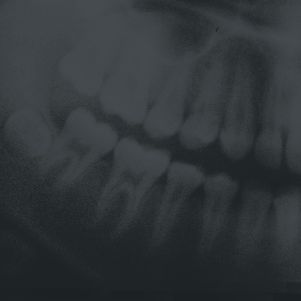 Dr. Alexandre Zappa - Dr Alexandre Zappa est diplômé d'un doctorat en médecine dentaire de l'Université de Montréal. Titulaire d'un certificat de résidence multidisciplinaire en stomatologie de l'Hôpital Notre-Dame à Montréal, il a participé à titre de coordonnateur de recherche à une étude sur «l'incidence des ostéoradionécroses des mâchoires chez les patients ayant reçu des traitements de radiothérapie en oncologie».