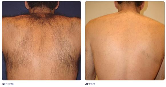 soprano-back-hair-removal.jpg