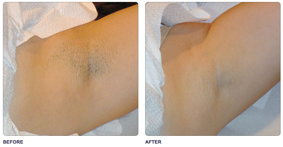 soprano-underarm-hair-removal.jpg