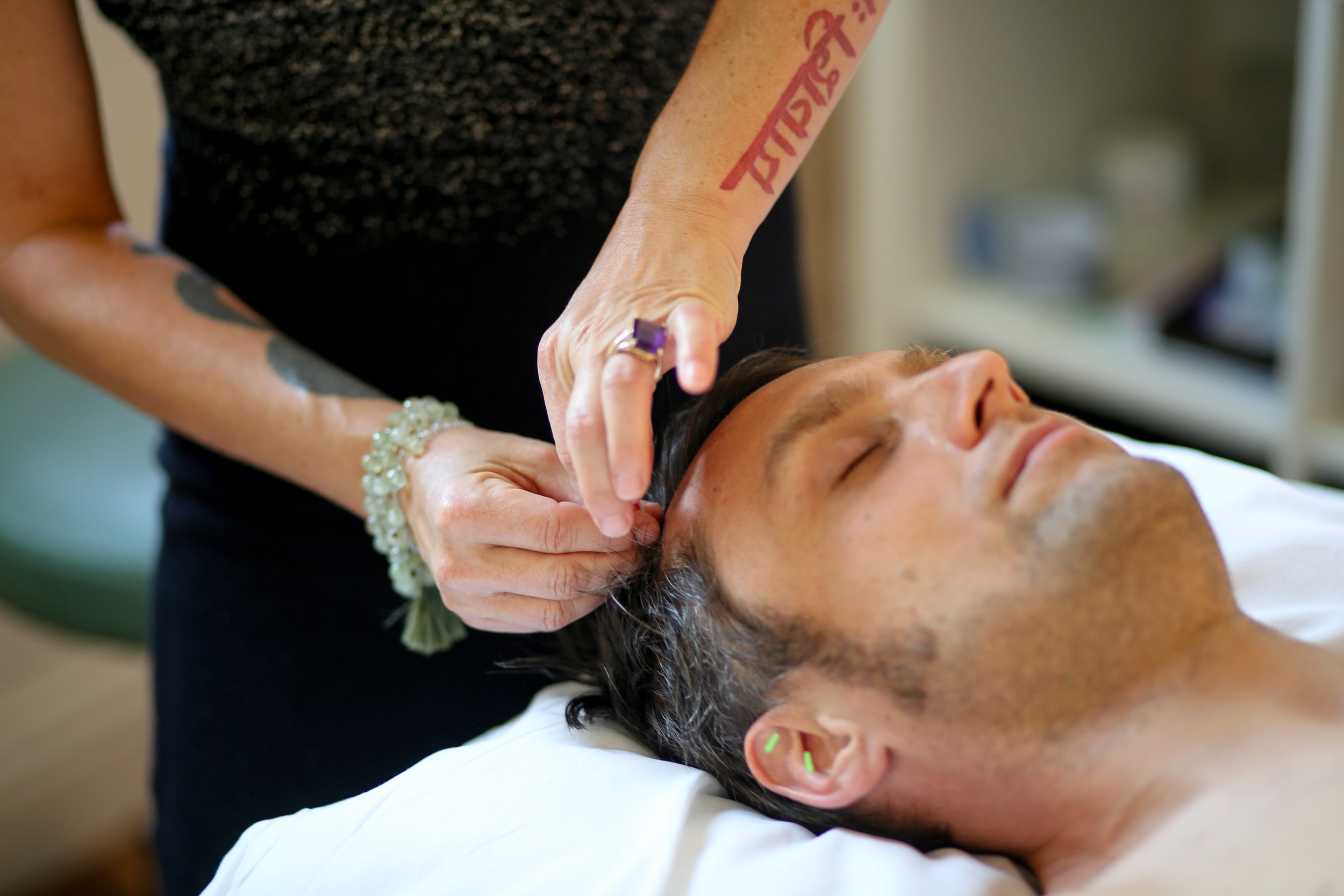 Acupuncture Face Lift