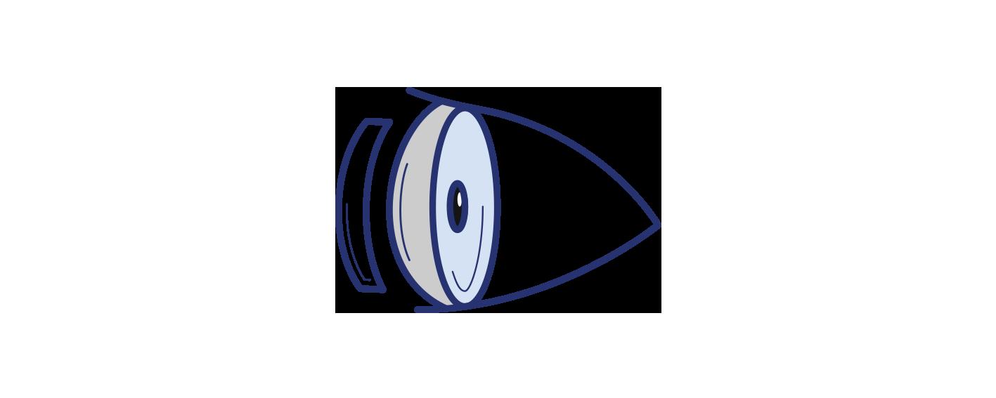 Icon illustrating fuchs dystrophy corneal surgery by Brisbane Ophthalmologist Dr David Gunn.