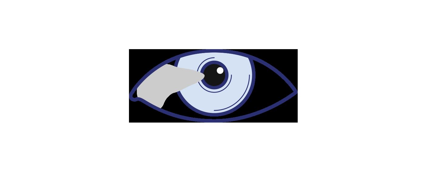 Pterygium Surgery Icon by Brisbane Ophthalmologist Dr David Gunn.