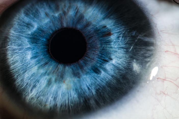 Image of the cornea Ophthalmologist Brisbane.