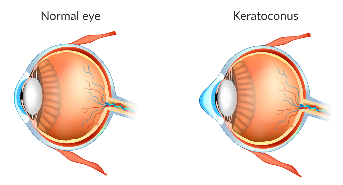 Illustration of a normal eye and an eye with keratoconus.