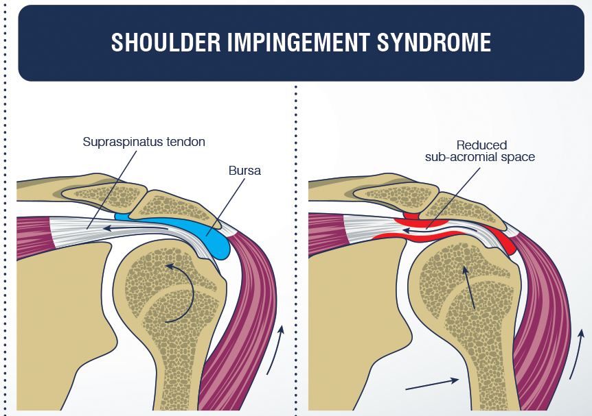 Shoulder-Impingement.png