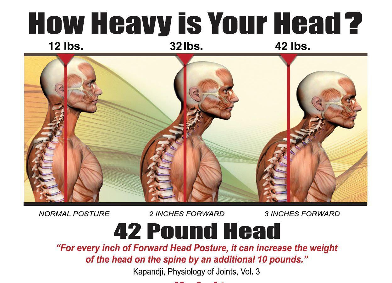 Forward-Head.jpg