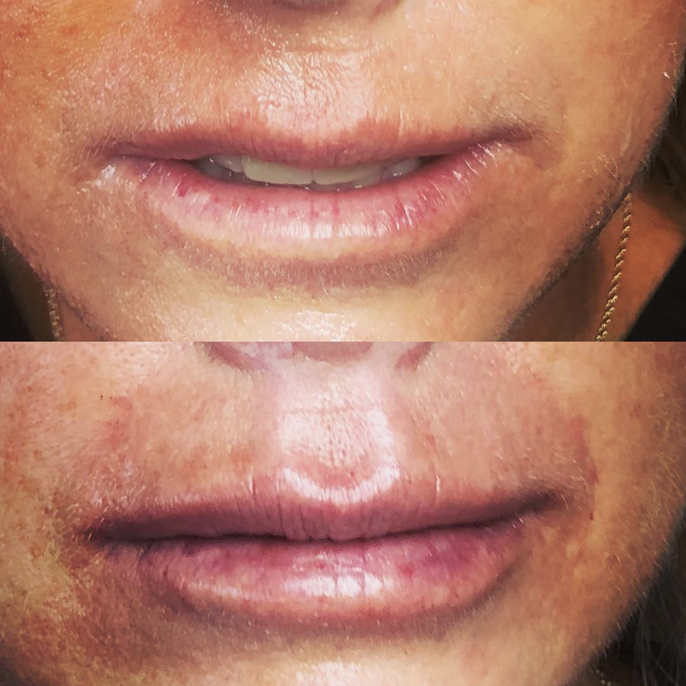 1 ml of filler to enhance the philtrum columns, vermillion border and add some hydration.  Immediate Before (top) vs After (bottom)
