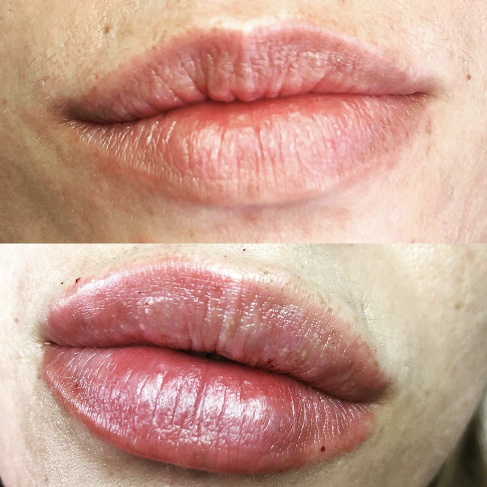 1 ml of filler over 2 sittings to even and plump these already beautiful lips!  Before (top) vs After (bottom)