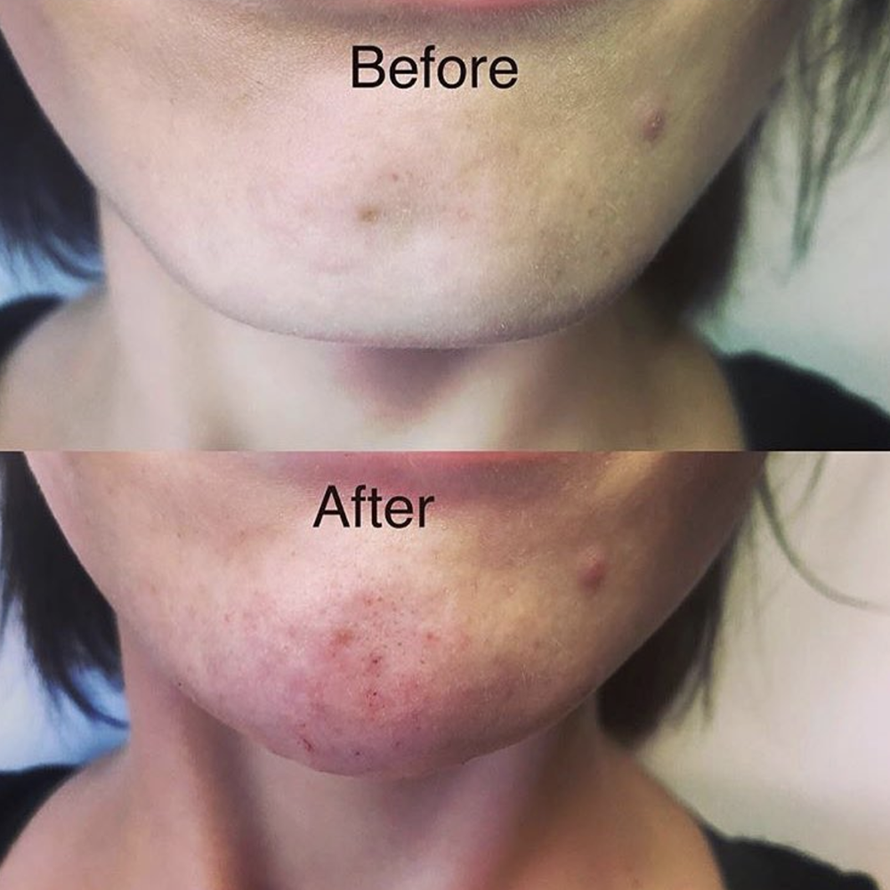 A little filler for chin augmentation. Patient wanted a softer look to their chin and to fill their deep set dimple. 1 syringe did the trick!  Before (top) vs After (bottom)