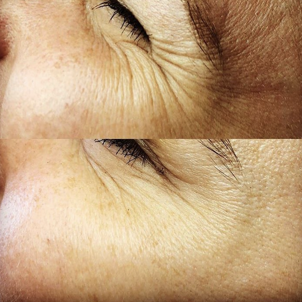 A few units of botox in the crows feet to visibly reduce wrinkles and in turn give your face a more youthful appearance.  Before (top) vs After (bottom)
