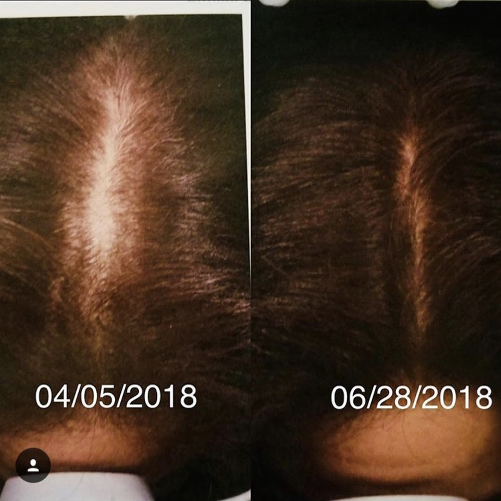 2 treatments of hair restoration!  Before (left) vs After (right)