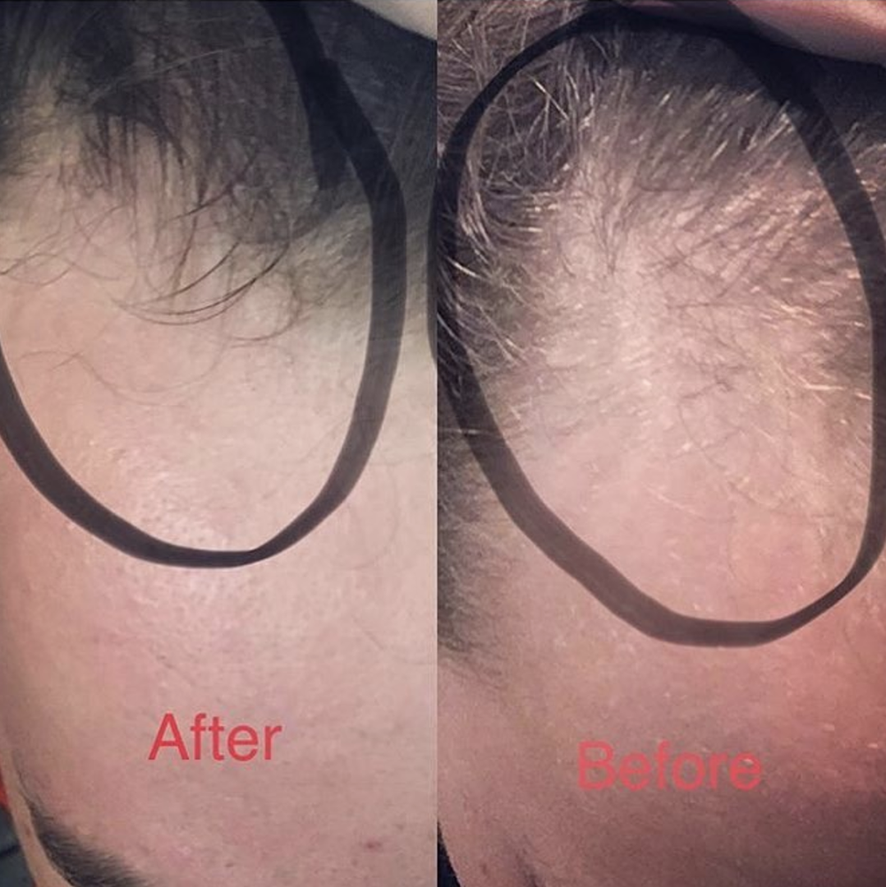 1 treatment of hair restoration with PRP and microneedling  Before (right) vs After (left)