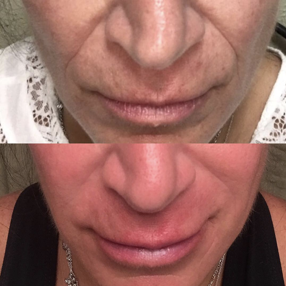 A few syringes of filler has the ability to take years off your appearance, leaving you feeling and looking refreshed, not over done!  Before (top) vs After (bottom)