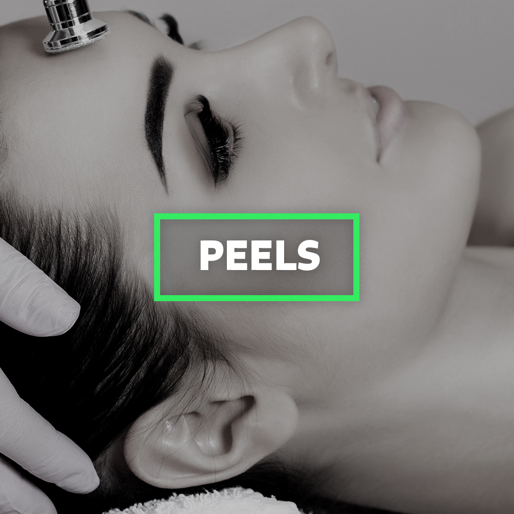 Chemical Peels at Hela Medical Spa Washington DC