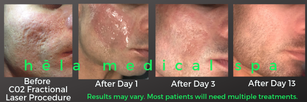 Male patient results of CO2 fractional laser treatment performed at Hela Medical Spa located in Georgetown Washington DC