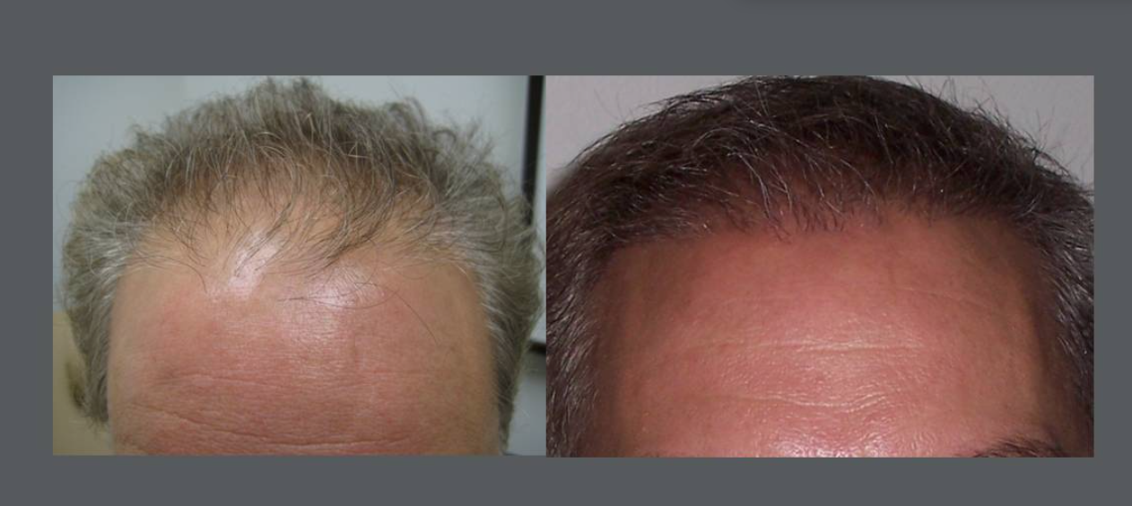 NeoGraft + Platelet Rich Plasma Hair Rejuvenation Treatment results for male patient with receding hairline