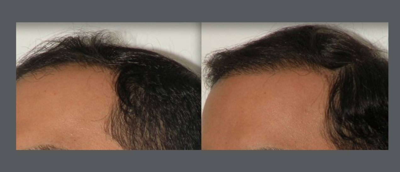 Neograft Male Client hair rejuvenation treatment results for receding hairline