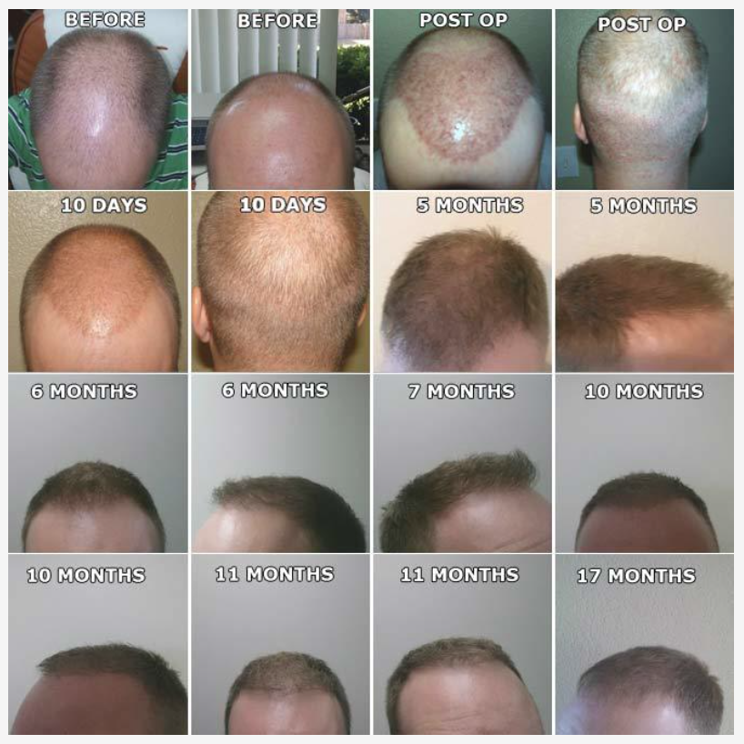 Neograft before and after pictures showing male pattern balndess remedied by Neograft PRP treatment for hair regrowth and rejuvenation