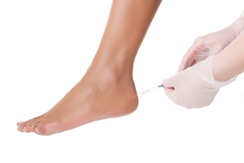 new york podiatrist treats foot pain and heel pain with injection therapy