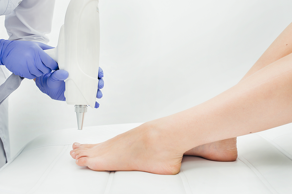 manhattan podiatrist treats yellow, ugly, fungal nails with laser therapy