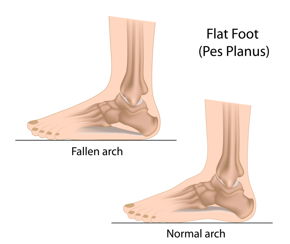manhattan podiatrists treats fallen arches and flat foot with custom orthotics for pain relief