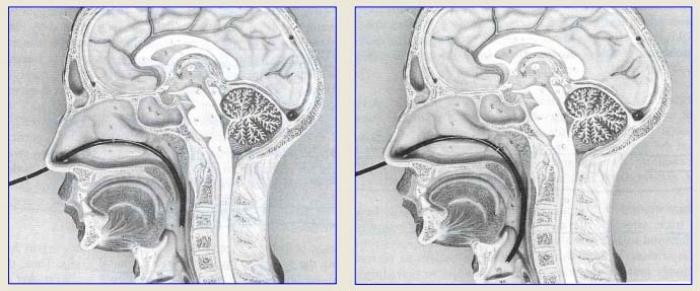 transnasal_scope_pass_sec_medical_speech_pathology.jpg