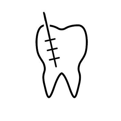 California Dental Care Services - Root Canals