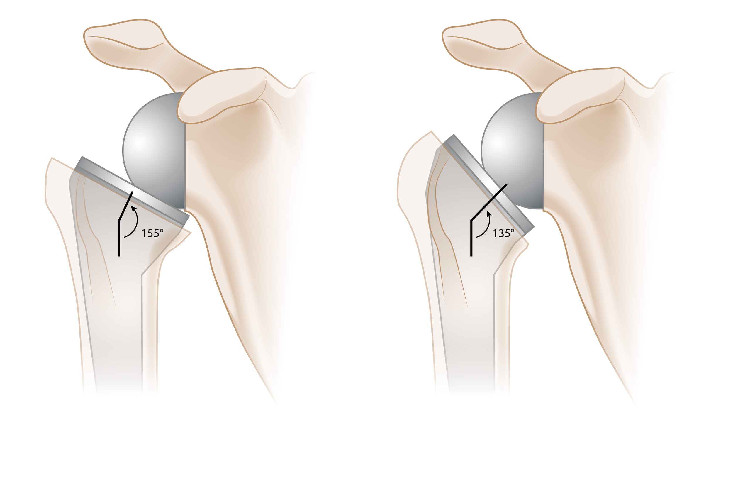 Reverse Shoulder Arthroplasty Prosthesis Comparison