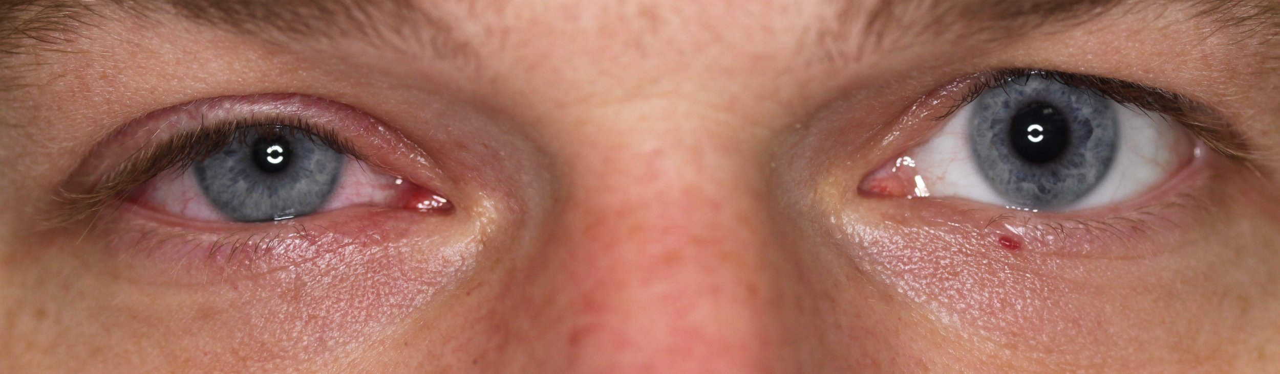 This is an example of a Horner's Syndrome after a Stellate Ganglion Block (SGB)