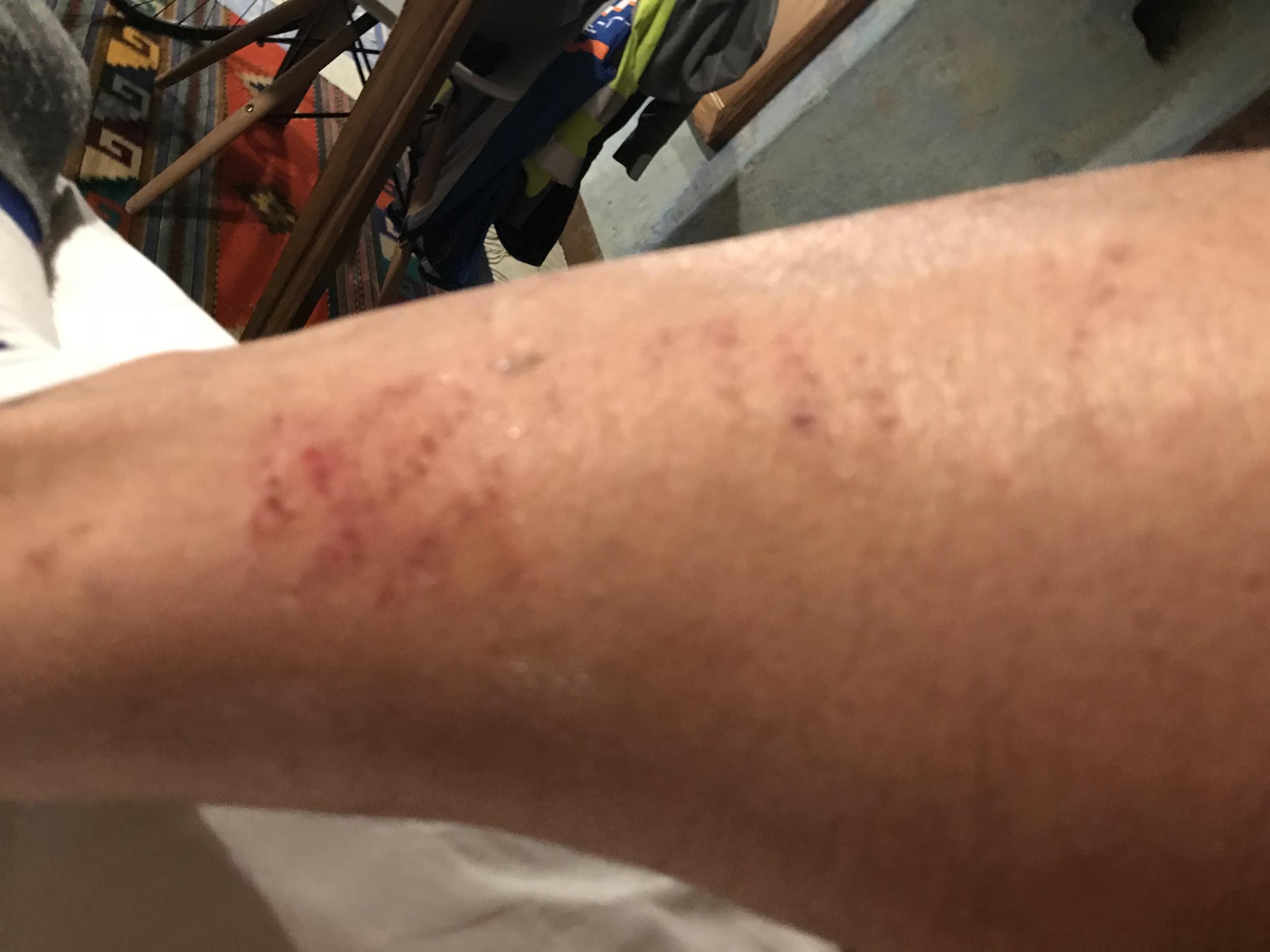 Left scratched leg