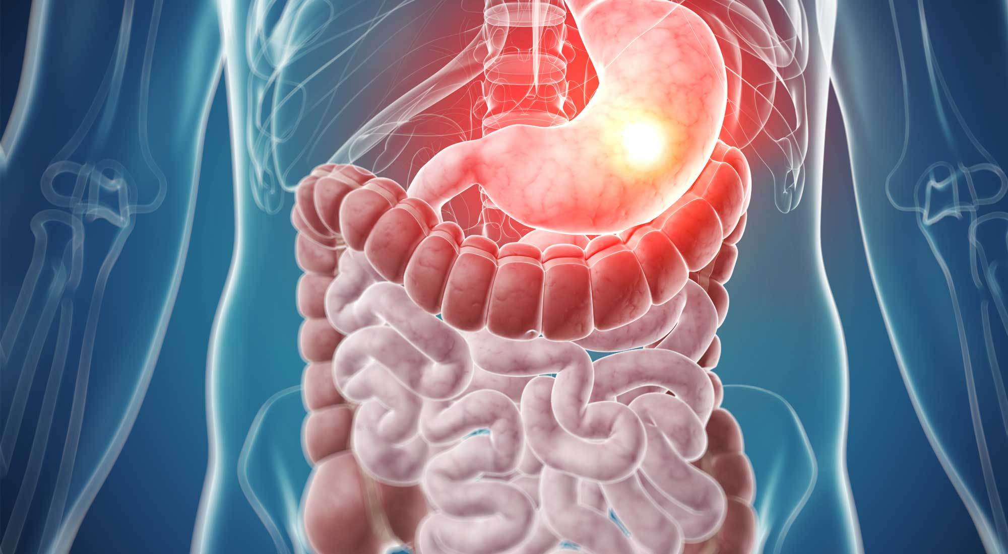 digestive-issue-post-img01.jpg