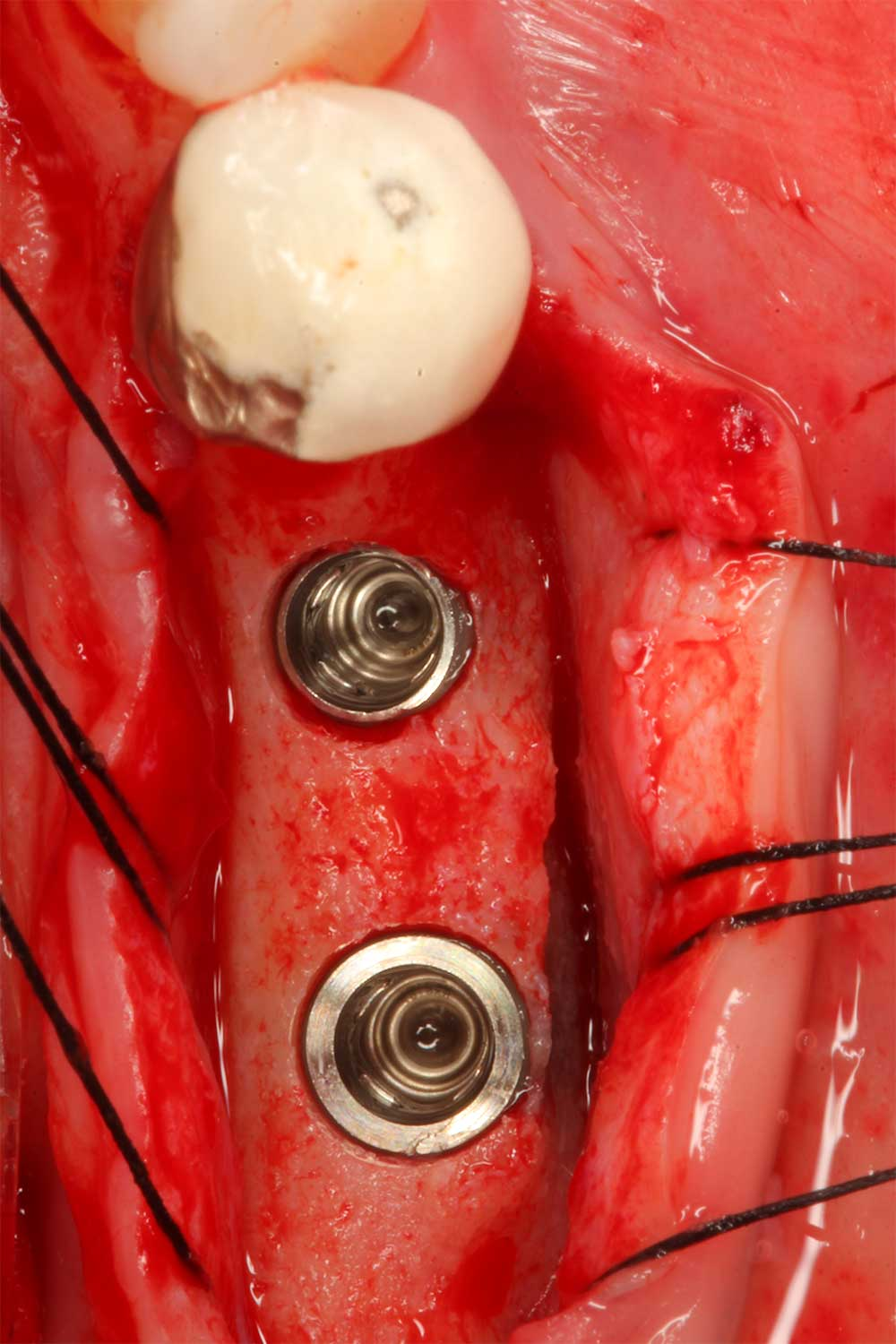 integrated-implant-dentistry-2.jpg