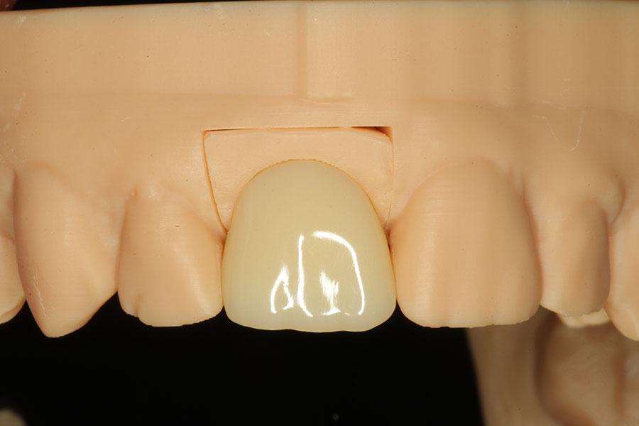 dental-implant-dentistry-2.jpg