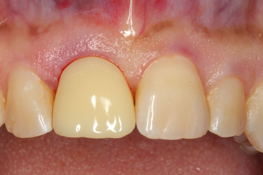 dental-implant-dentistry-5.jpg