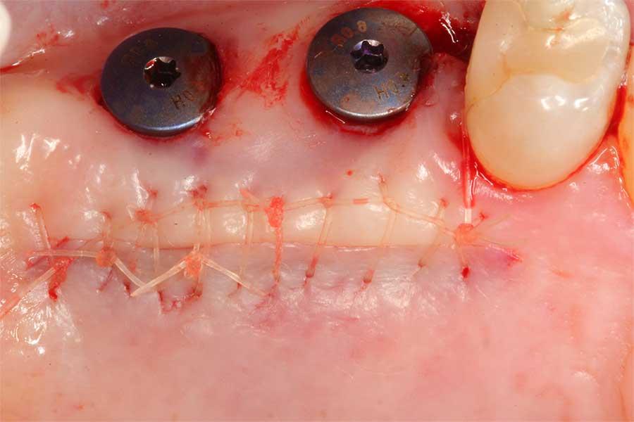 soft-tissue-grafting-2.jpg