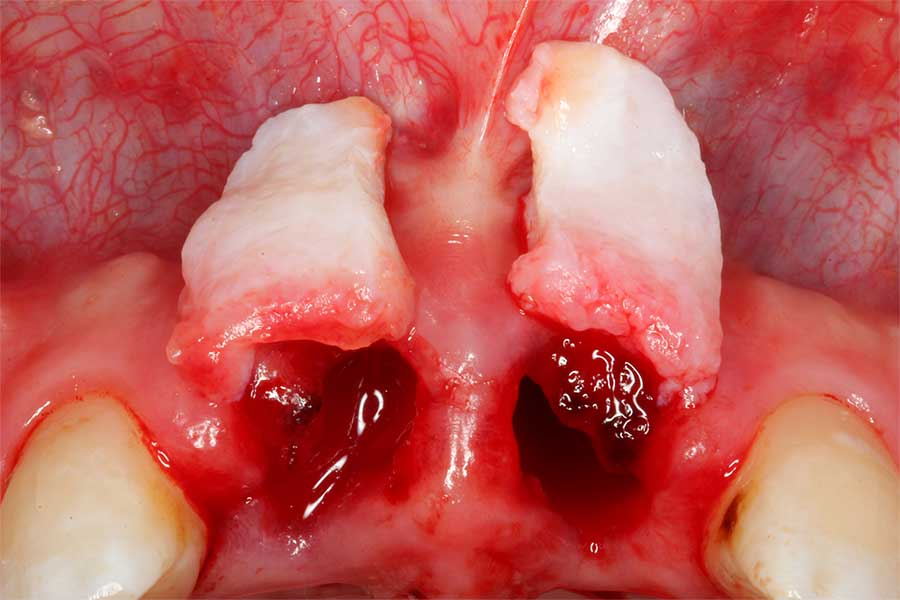 soft-tissue-grafting-3.jpg