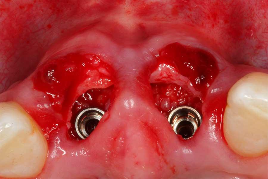 soft-tissue-grafting-4.jpg