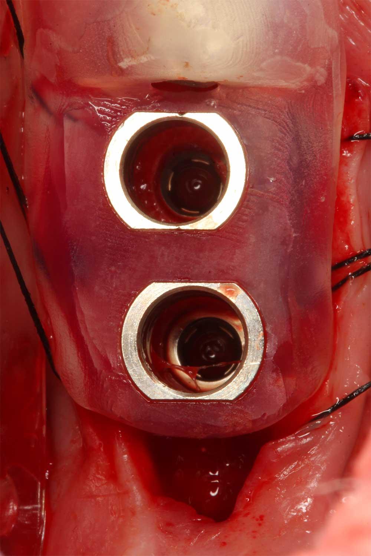 integrated-implant-dentistry-1.jpg