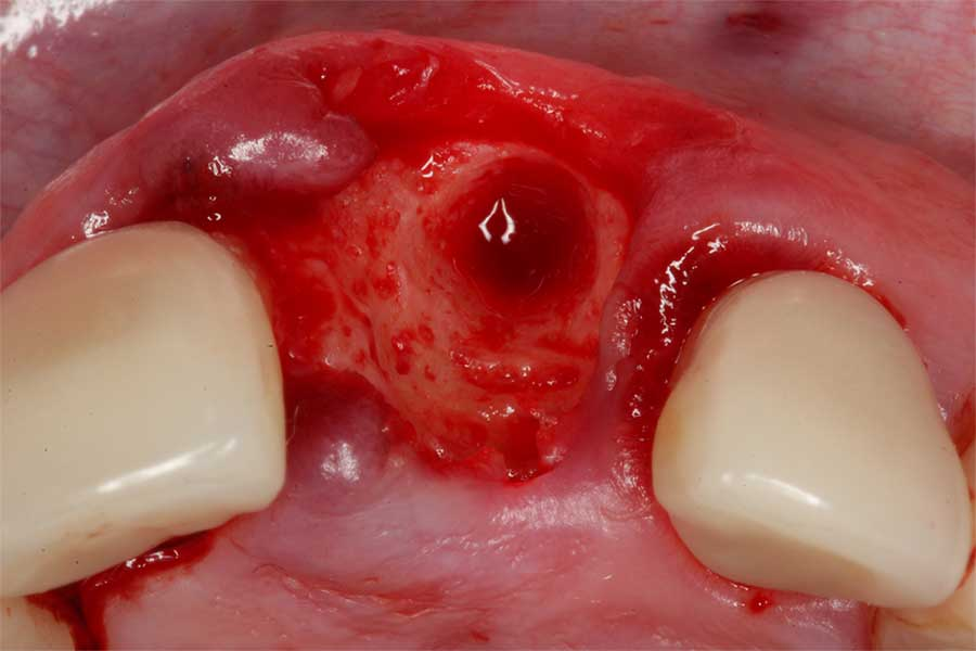 bone-grafting-in-implant-dentistry-1.jpg