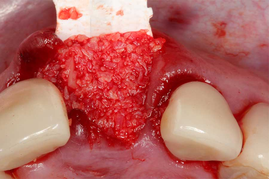 bone-grafting-in-implant-dentistry-2.jpg