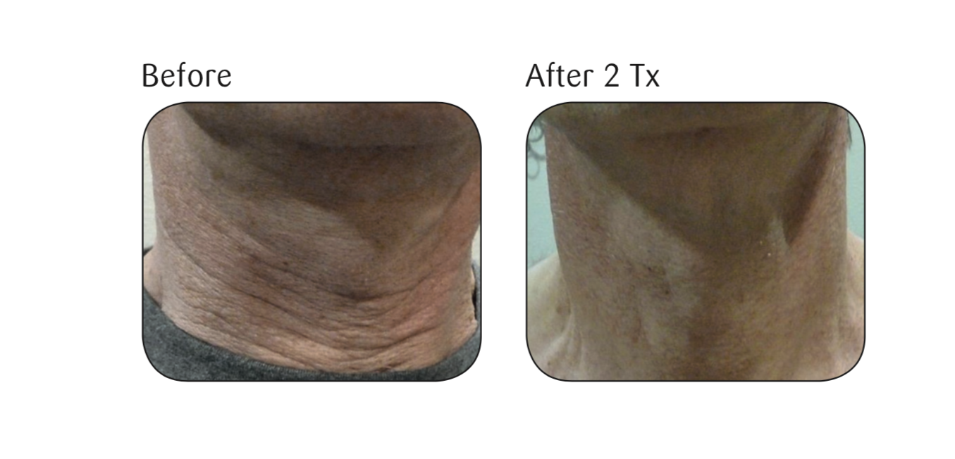 Before and after two Viora Skin Tightening (V-ST) treatments.