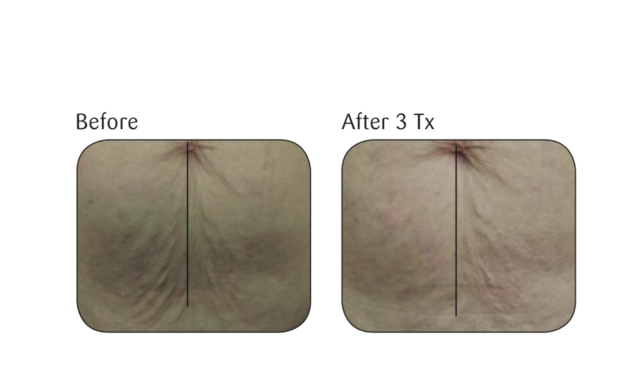 Before and after three skin tightening treatments using the Viora Skin Tightening (V-ST) procedure.