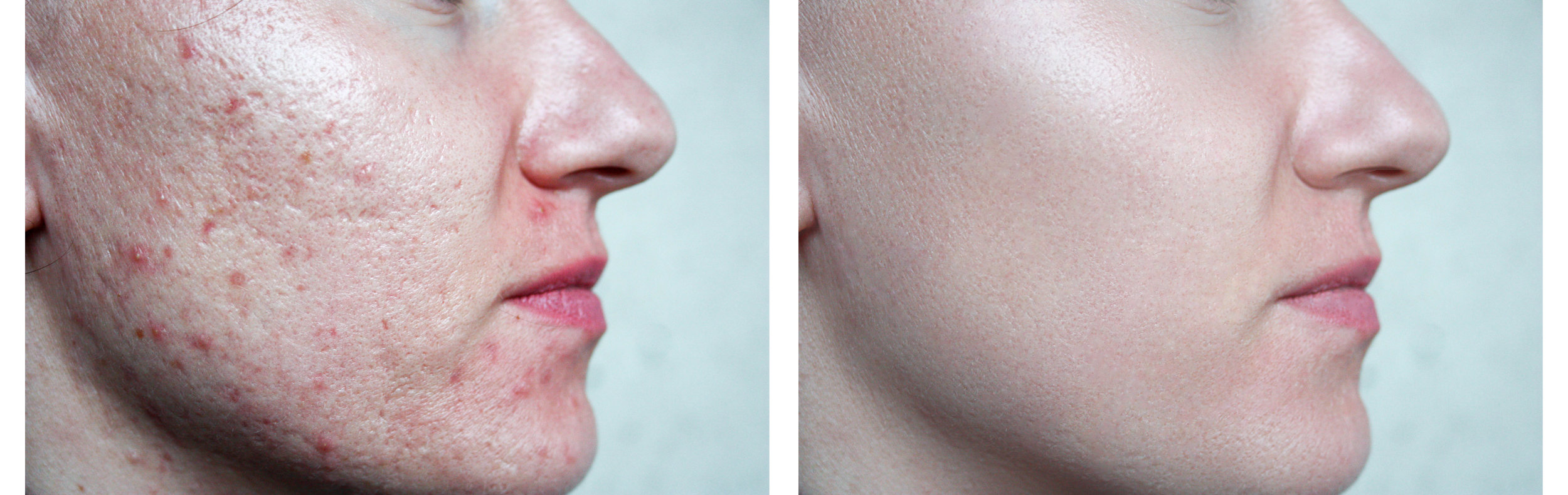 Before and after treating with a combination of IPL for active acne breakouts and microneedling for acne scarring.