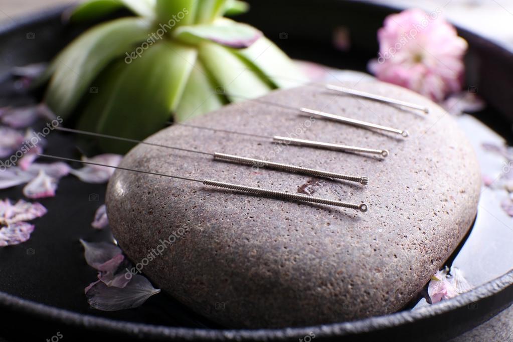 AcupunctureNeedles_Services
