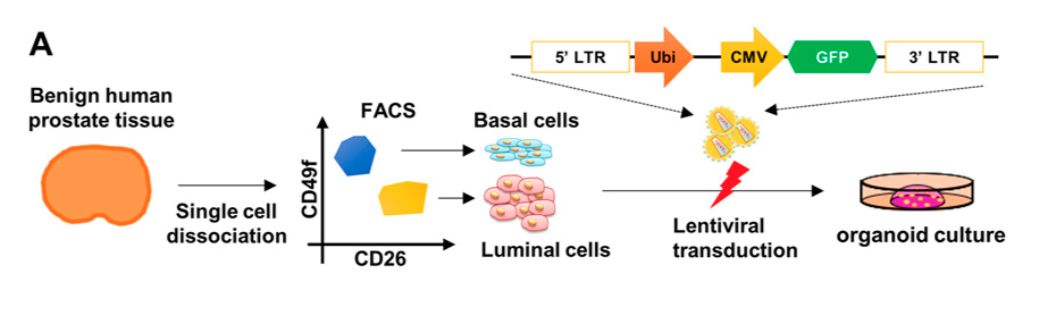 Diagram of the process by which the authors created organoid cultures from basal and luminal cells infected with a vector containing cancerous oncogenes. Credit: Park et al. 2016
