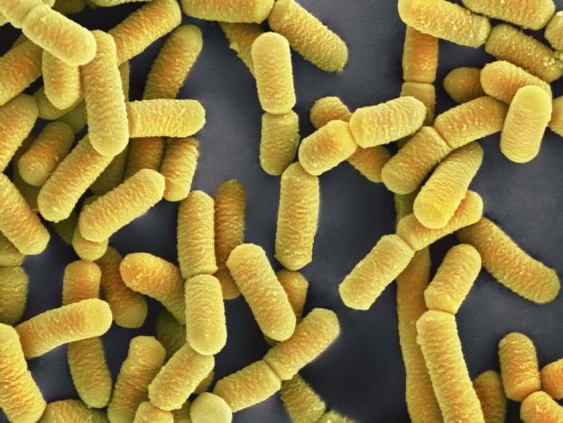 Shown here is the probiotic bacteria  L. rhamnosus,  which, depending on the strain, can help alleviate bacterial vaginosis and antibiotic-associated diarrhea. Photo credit: Regina Zopf