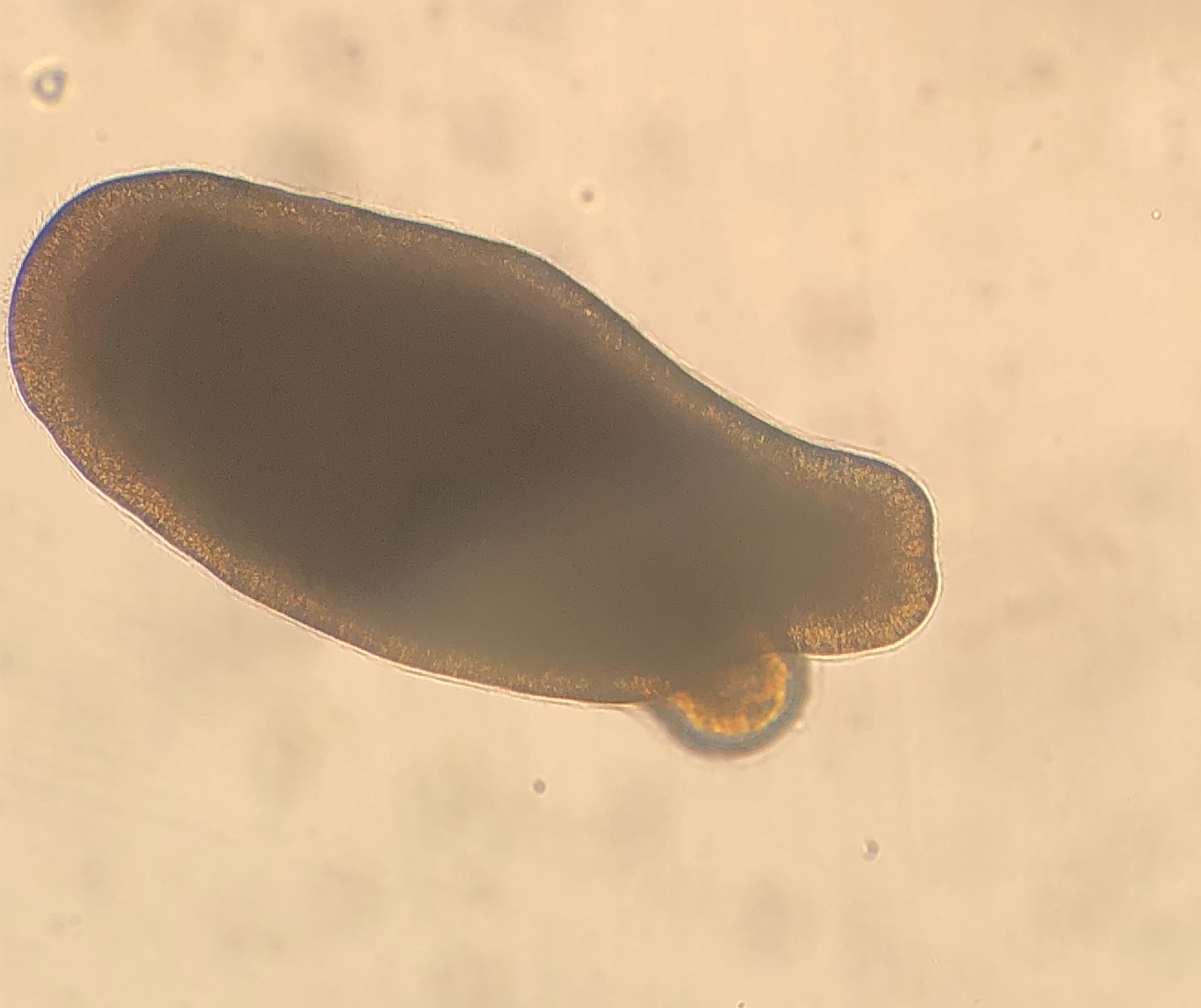 A 3-day-old, swimming  Diploria labyrinthiformis  larva under a microscope.