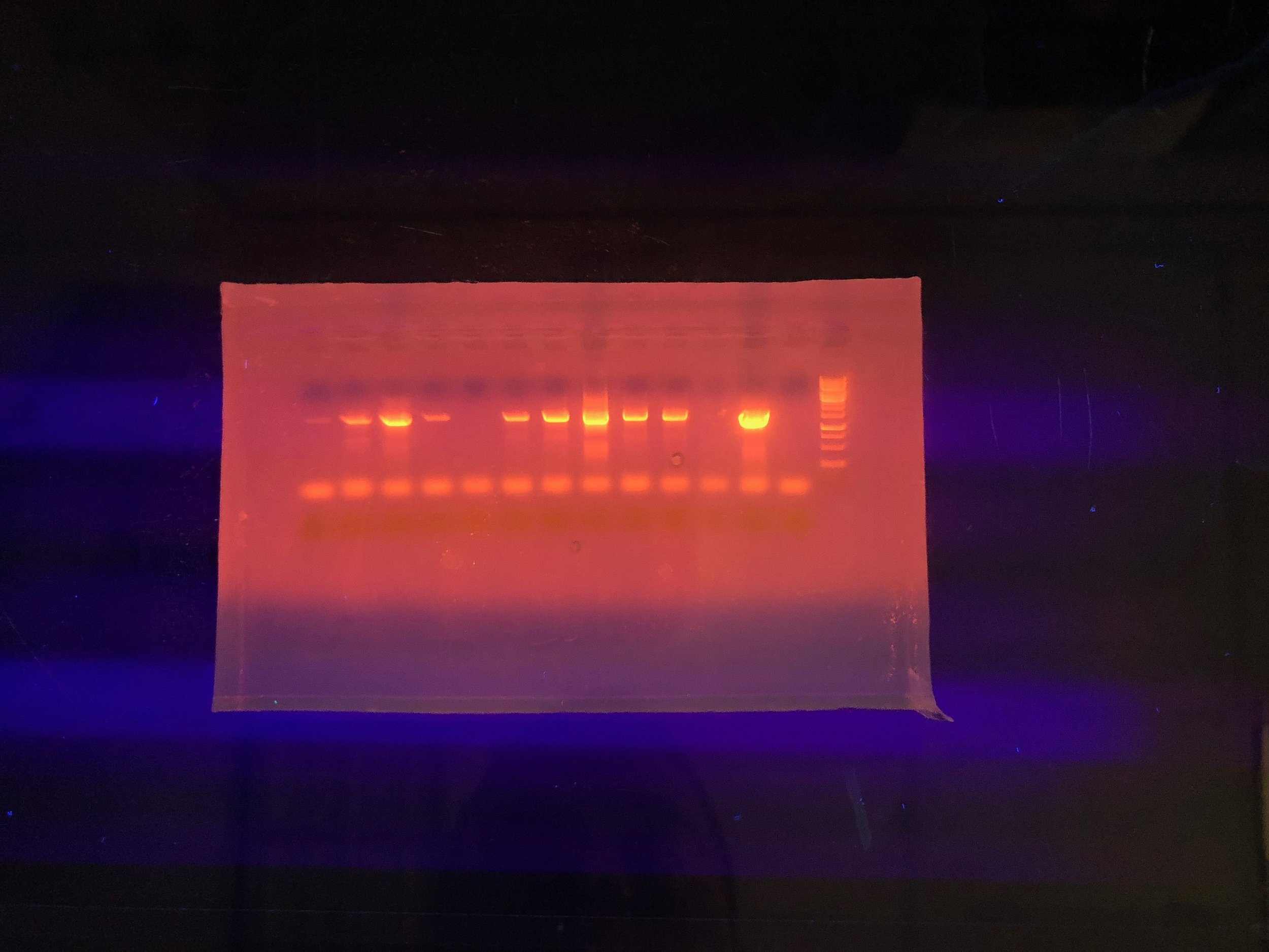 Each of those glowing lines represents a sample of DNA, and if it's glowing, it means what we extracted was DNA from bacteria. This is a good thing! Photo credit: Jason Baer
